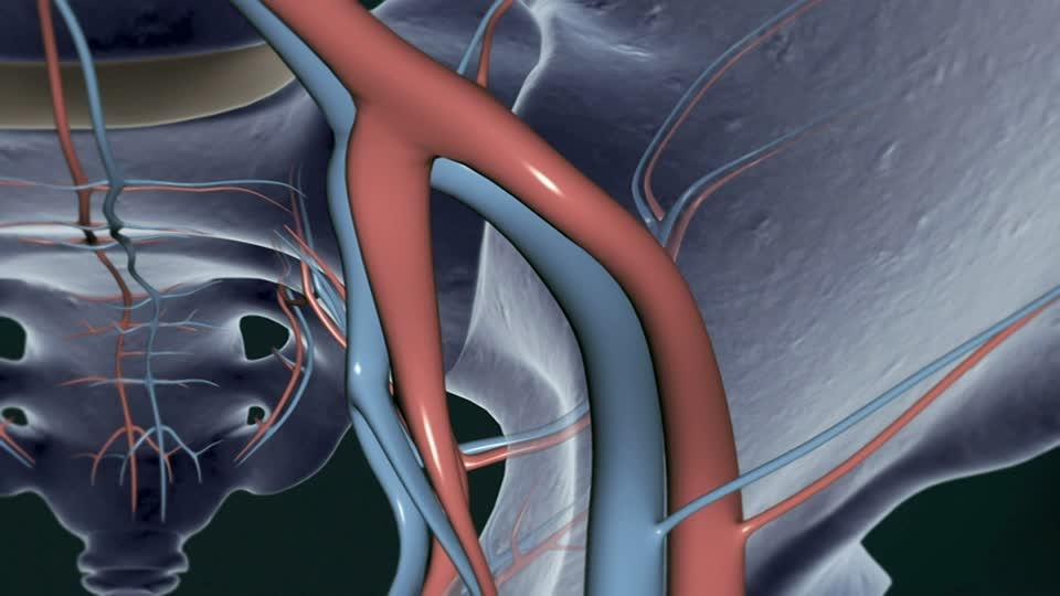 Arterie in 3D per prevenire l'infarto