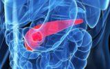 Cancro del pancreas: nuove cure in sperimentazione