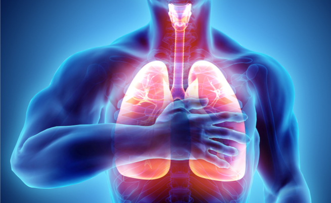Cos'è la fibrosi cistica: sintomi e cure per una malattia grave