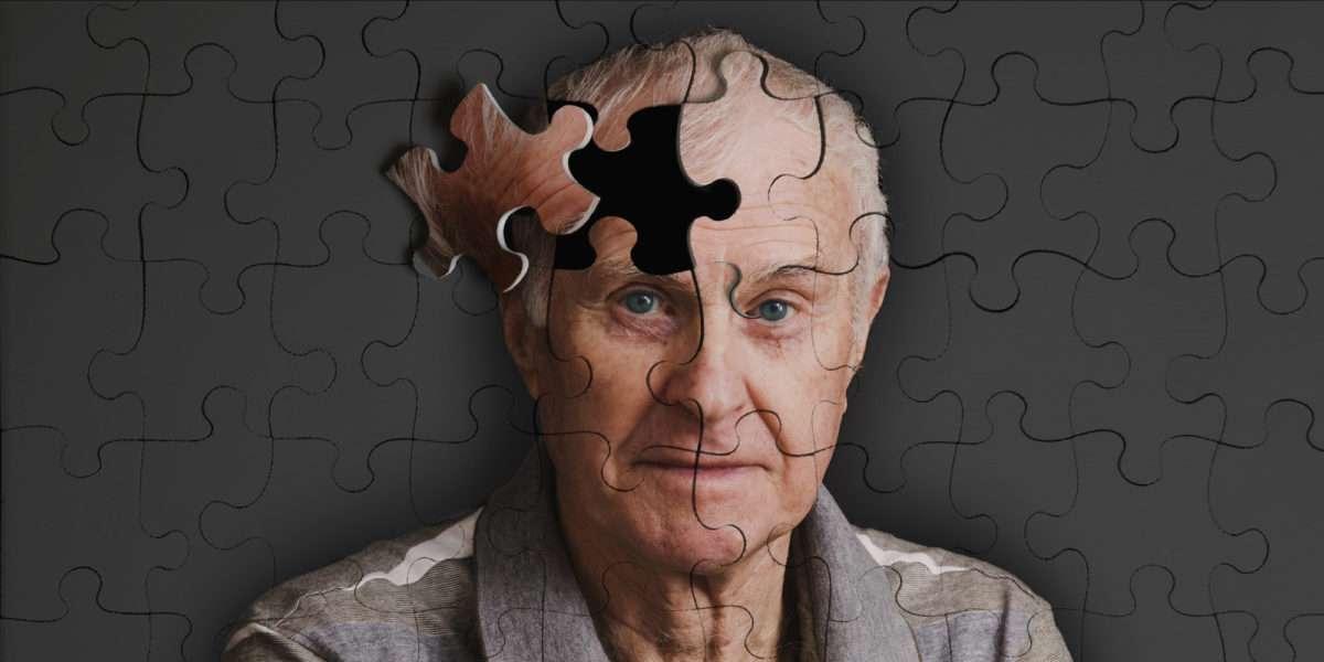 Cure e assistenza odontoiatriche per i malati di Alzheimer
