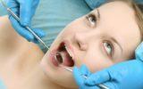 Eliminare il tartaro per una bocca sana