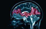 Epilessia: una campagna educativa digitale per formare i docenti