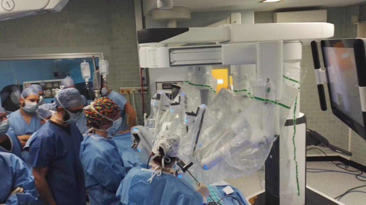Espianto rene in chirurgia robotica a Padova