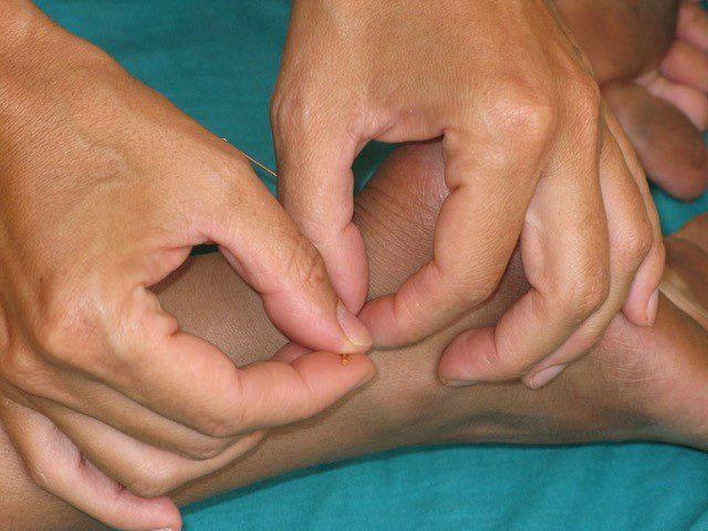 L'agopuntura e la medicina integrata nella cura dei malati con patologie croniche