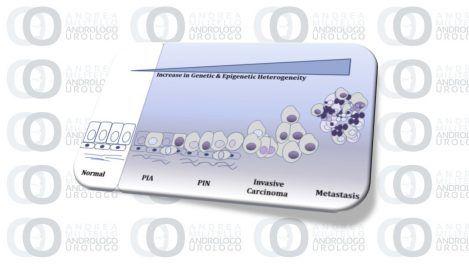 L'epigenetica per la cura del tumore della prostata