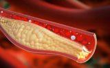 La dieta che aiuta il colesterolo: 5 alimenti da provare