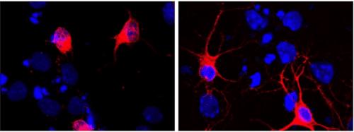 La nuova ricerca del Cnr per combattere il morbo di Alzheimer