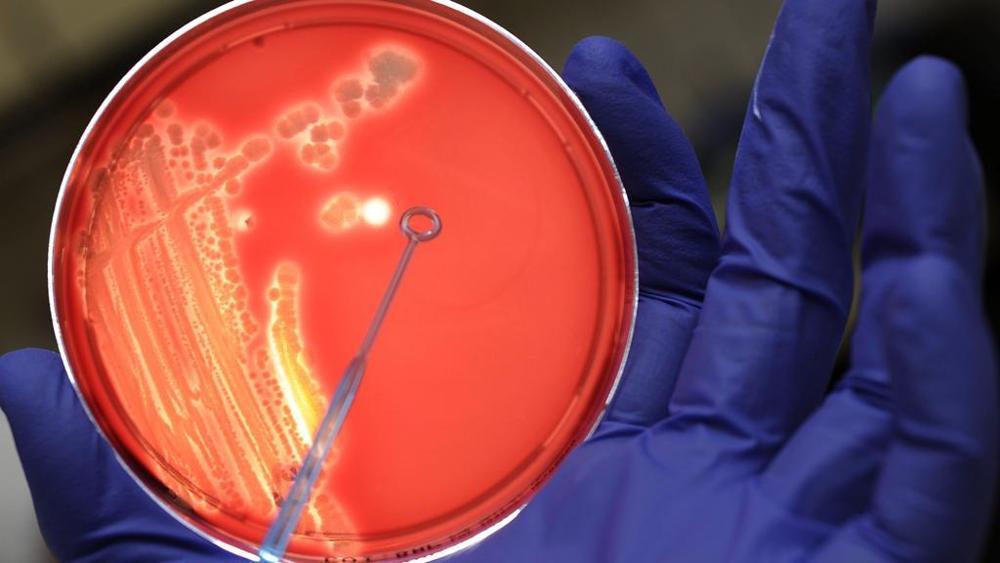 Le cellule del sistema immunitario contro il tumore