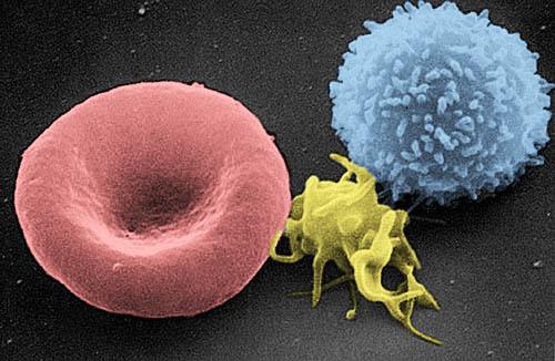 Malattie genetiche: un prelievo contro la trasmissione ereditaria