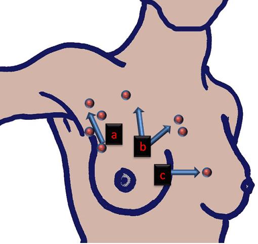 Mastectomia conservativa e follow-up nelle pazienti con tumore mammario