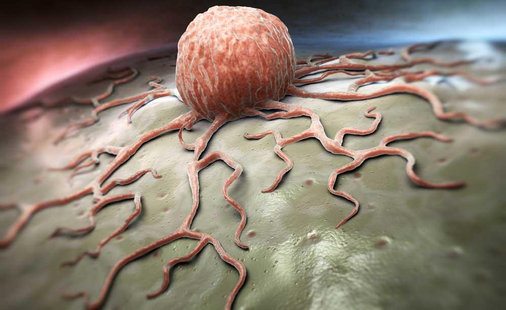 Nuove scoperte sul tumore ovarico