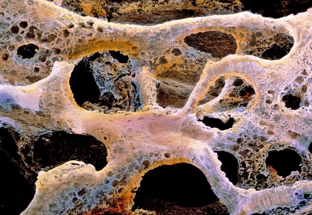 Osteoporosi: rischio di infarto miocardico con medicinale a base di stronzio
