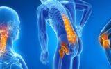 Posso prevenire l'artrosi?