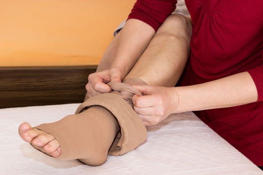 Rischio trombosi: la calza elastica giusta