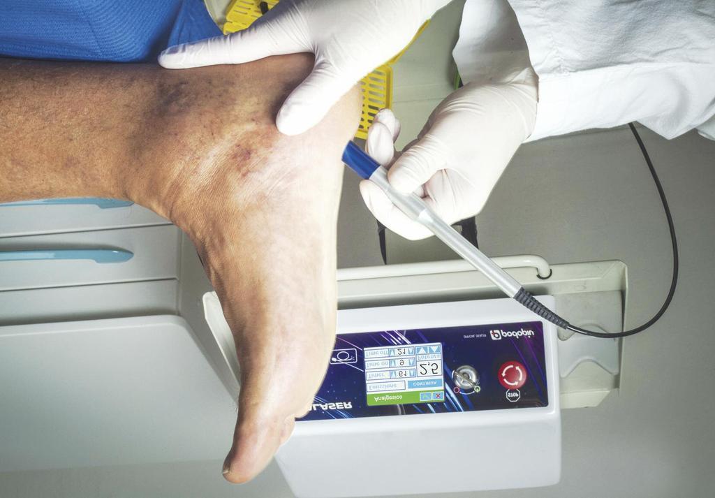 Theal Therapy: il nuovo trattamento per il piede diabetico