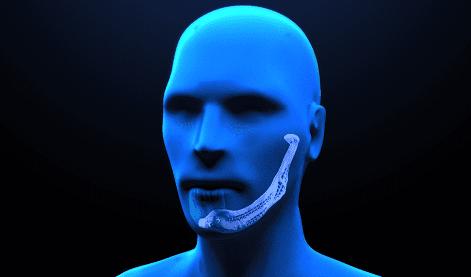 Trapianto artificiale di mandibola