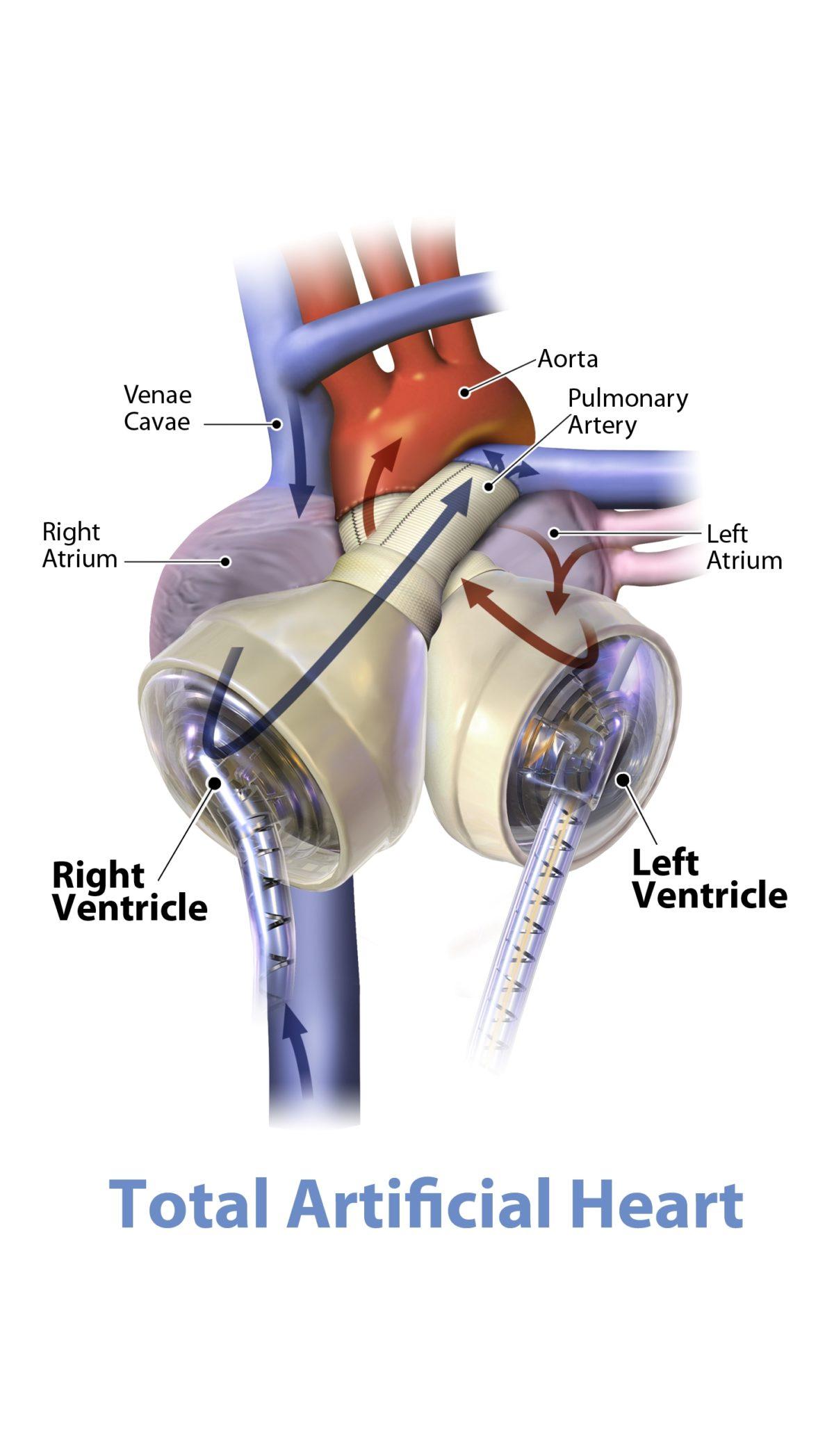 Un cuore artificiale totale