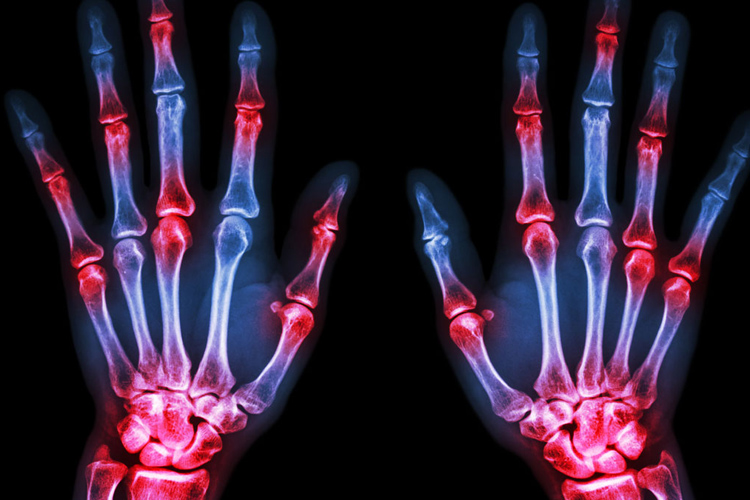 Una nuova cura per artrite reumatoide e diabete