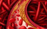 Una tabella per prevenire il colesterolo