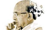 Uno studio longitudinale sull'invecchiamento cerebrale
