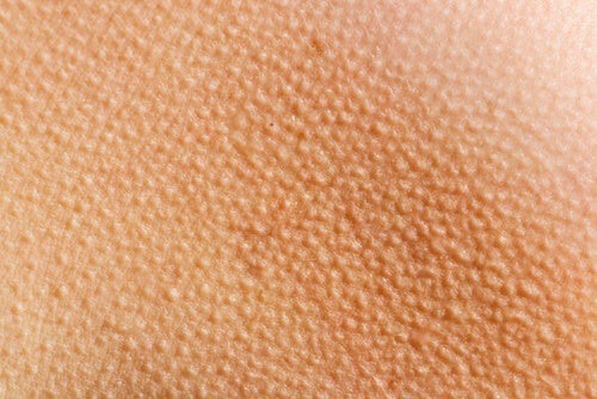 Funghi della pelle: come si cura la tigna