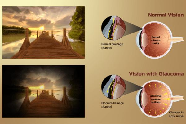 Vista, la pandemia ha inciso sulla cura del glaucoma tra visite e diagnosi